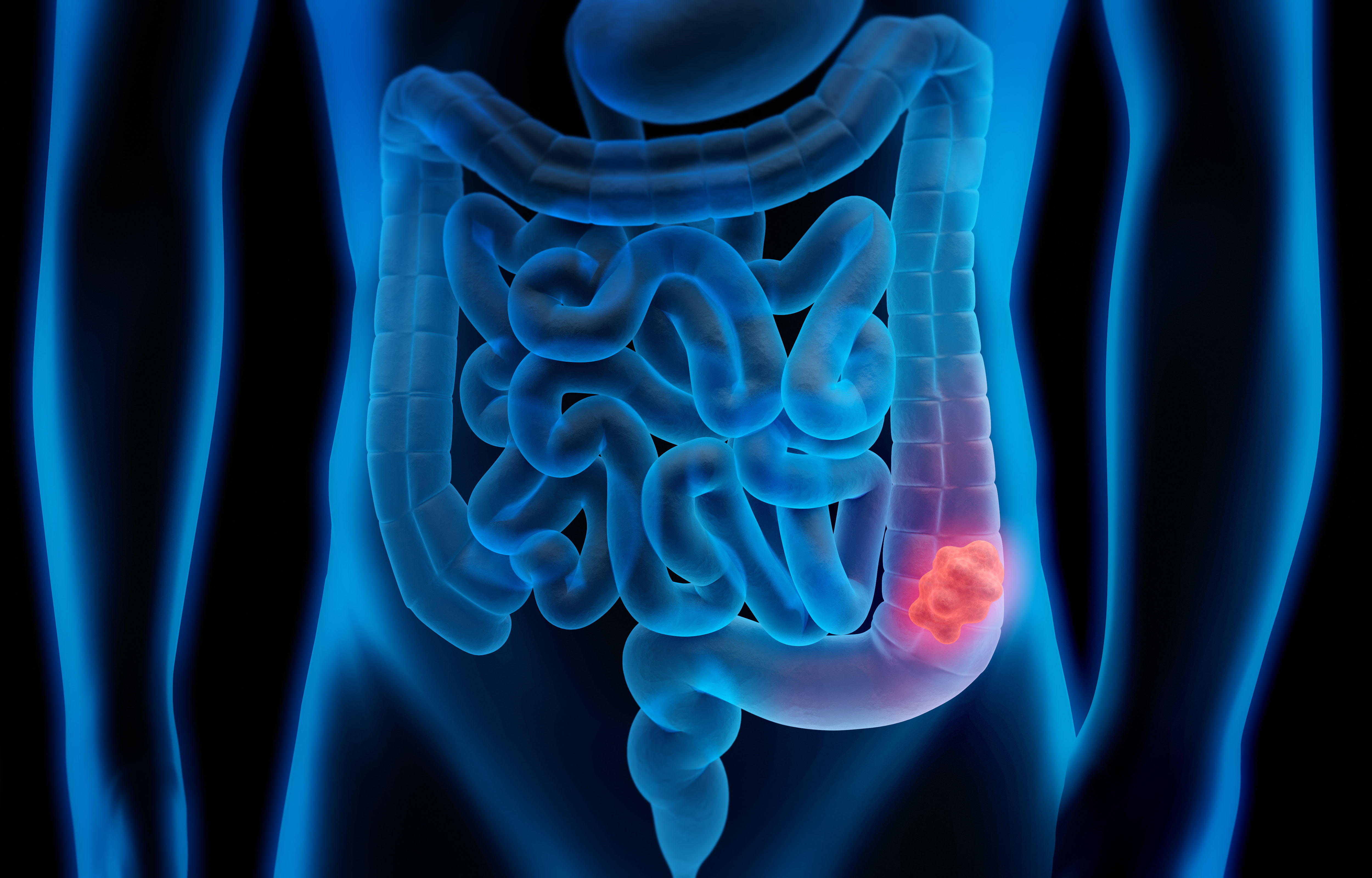 The Facts About Colorectal Polyps Roswell Park Comprehensive Cancer Center
