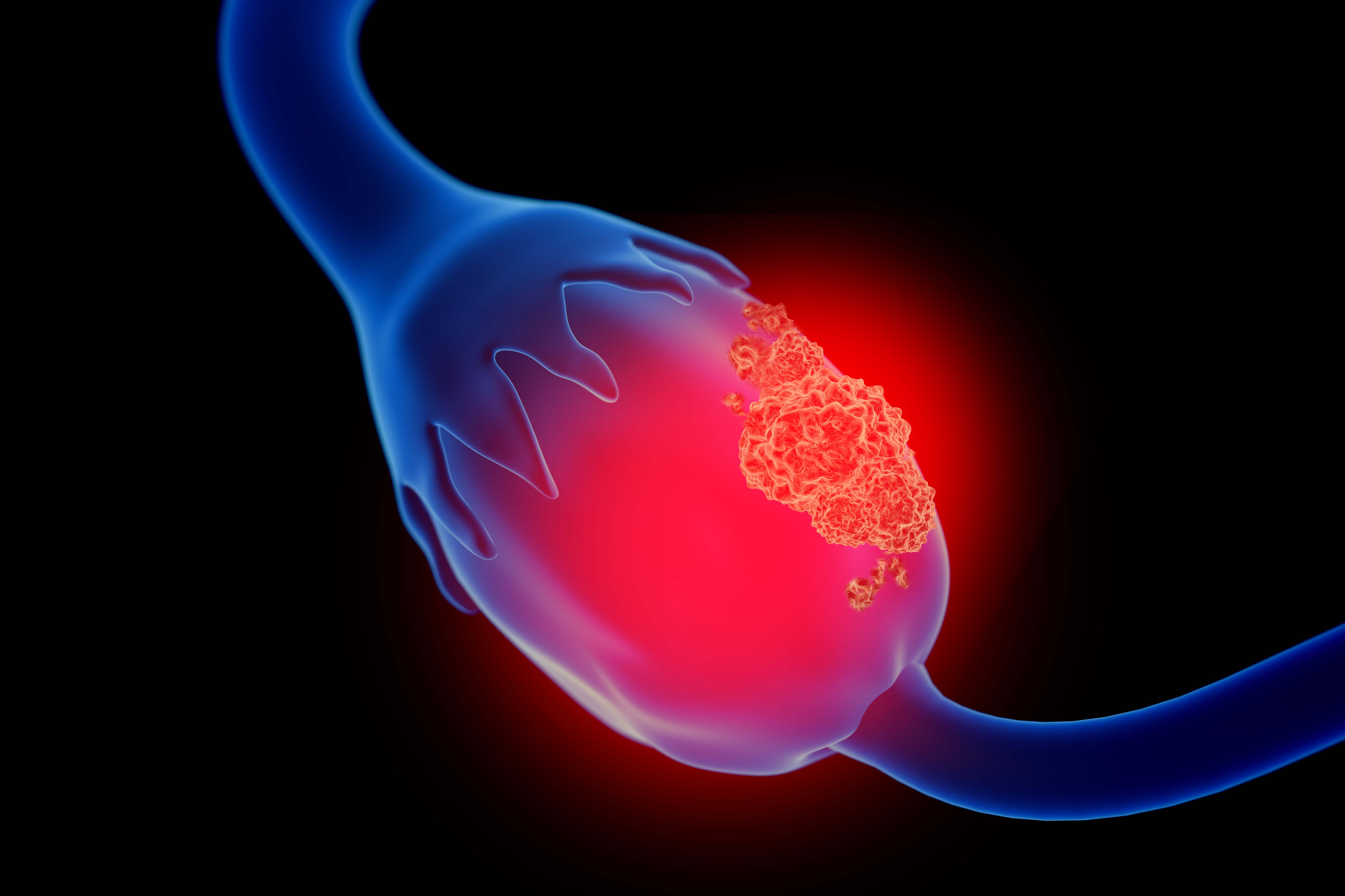 Can Ovarian Cancer Come Back After A Hysterectomy Roswell Park Comprehensive Cancer Center