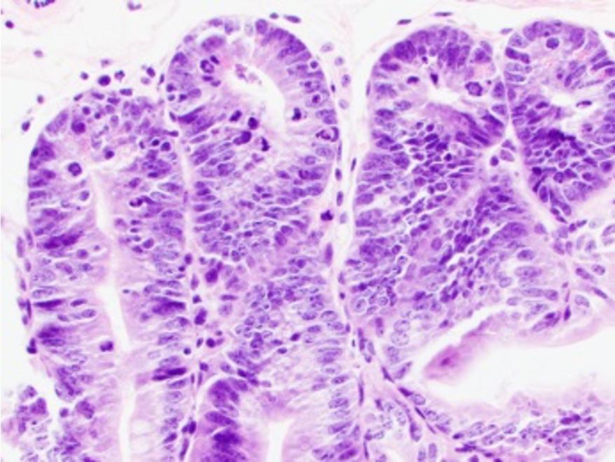 Newswise: gvhd-small-intestine-cells_hmohammadpourjpg.jpg
