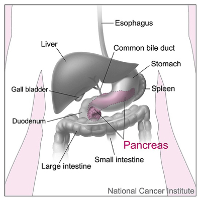 Risk Factors for Pancreas Cancer | Roswell Park