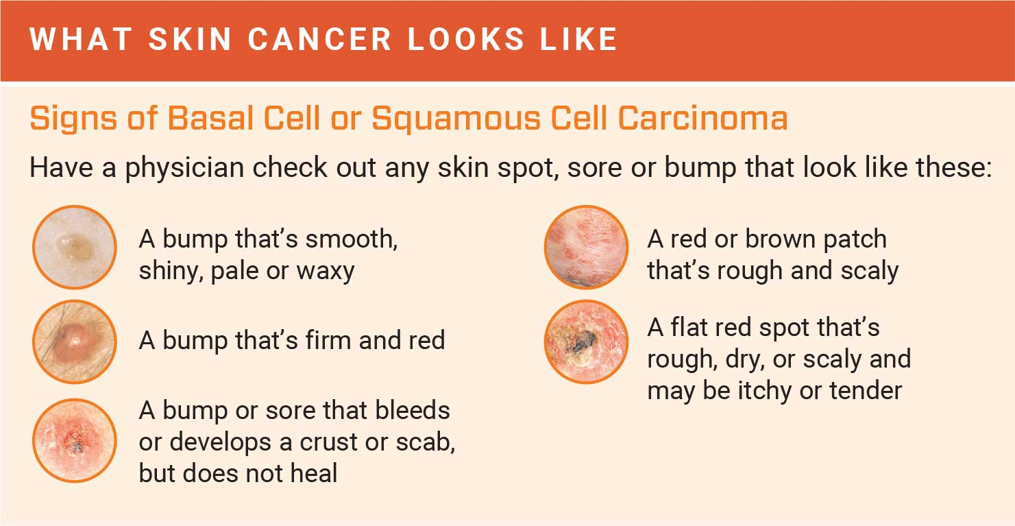 How To Detect Skin Cancer Roswell Park Comprehensive Cancer Center