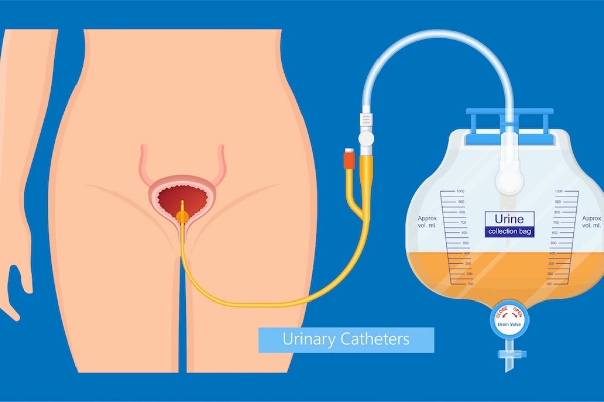 Illustration shows Foley catheter and how it connects to the bladder