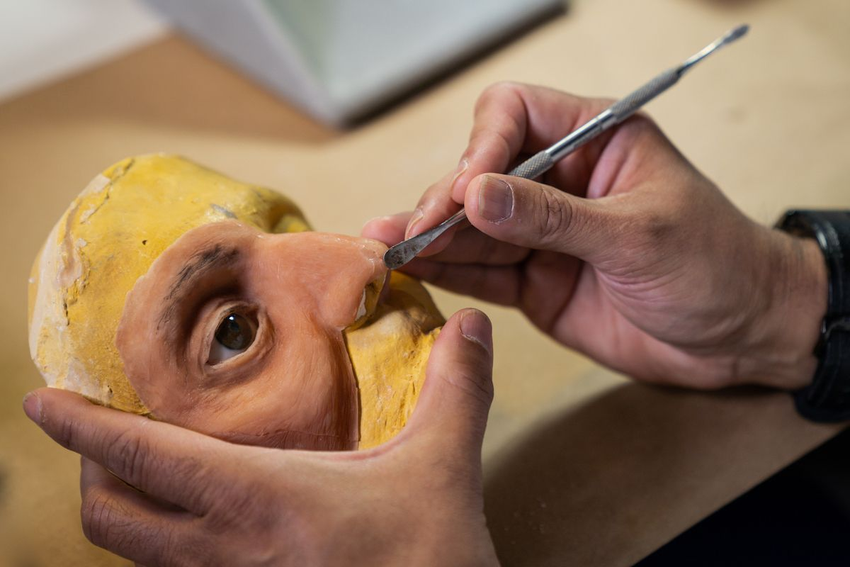 A facial prosthesis is being sculpted for a patient with head and neck cancer