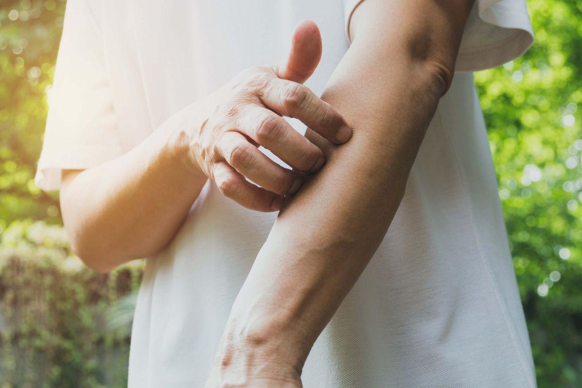 List of Contagious Skin Rashes - Healthline
