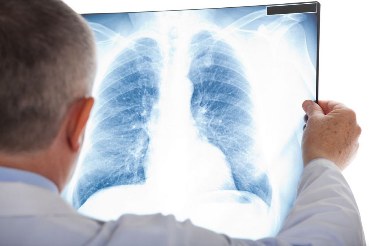 Preventing Pneumonia - Simple steps for breathing easier after surgery