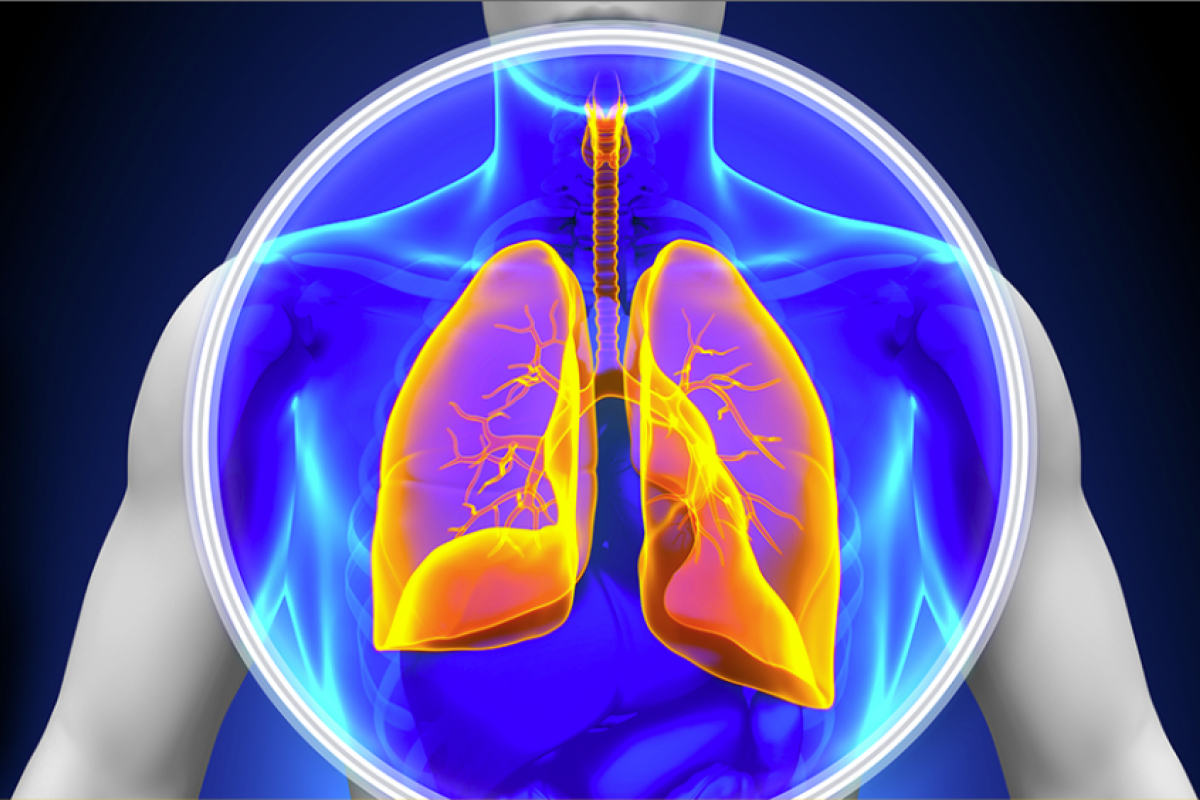 Lung nodule surveillance—your next steps after lung cancer screening
