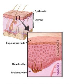 Anatomical illustration of the layers of skin